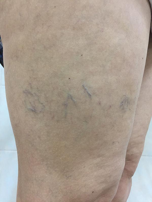 Операция варикоза на ногах цена