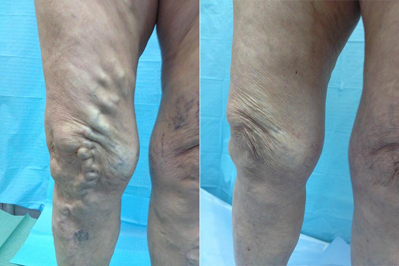 Стоимость лечения варикоза вен на ногах